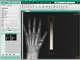 デジタル骨密度検査(フジフイルム製)